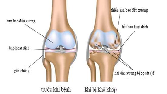 Nguyên nhân gây ra khô khớp xương