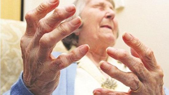 Bệnh sưng khớp tay ở người lớn tuổi
