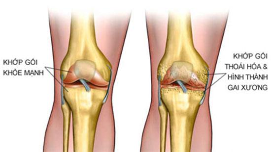 Bệnh thoái hóa khớp xương gối