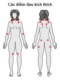 Hội chứng đau cơ tự phát lan tỏa (Fibromyalgia syndrome)